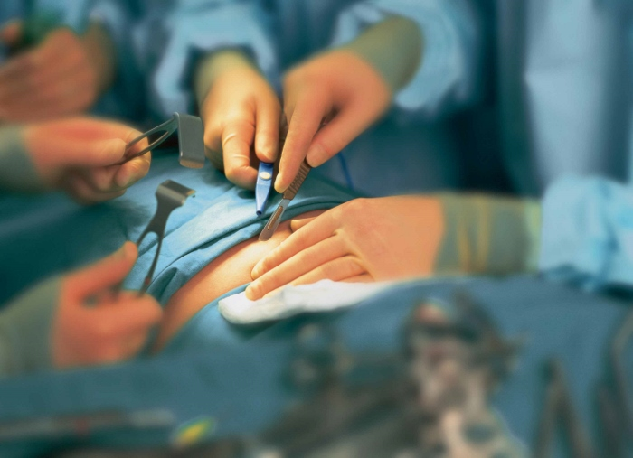 A group of surgeons committing surgery on a patient.